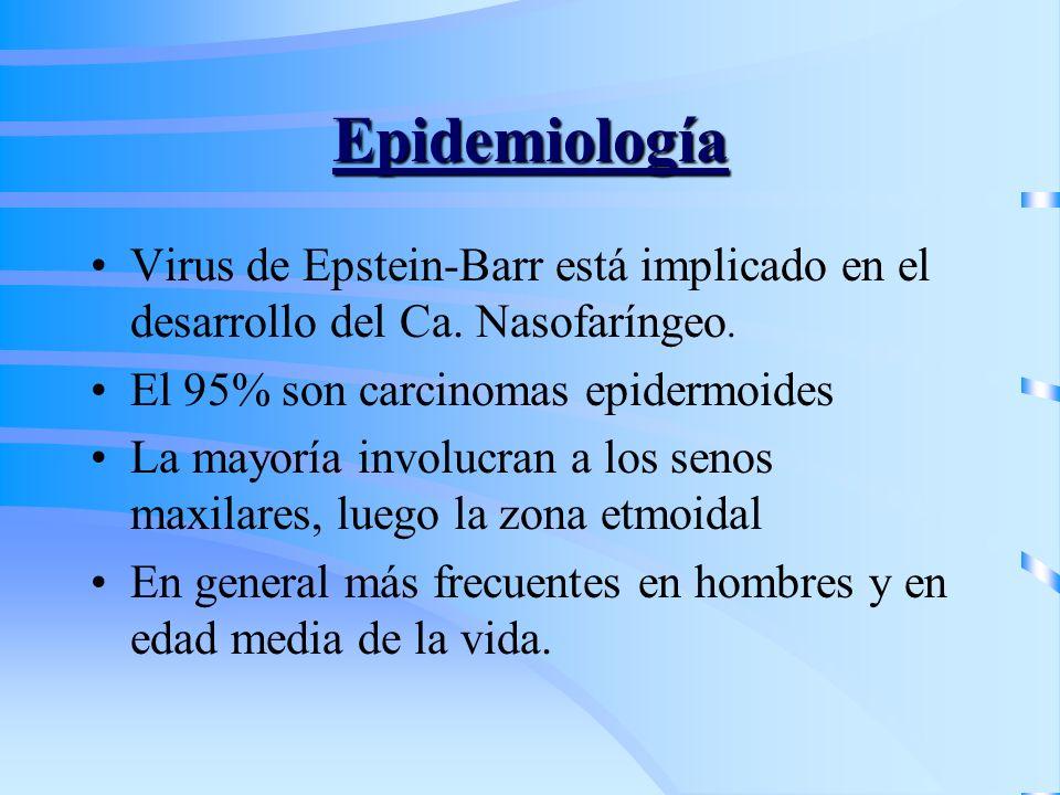 Epidemiología Virus de Epstein-Barr está implicado en el desarrollo del Ca. Nasofaríngeo. El 95% son carcinomas epidermoides.