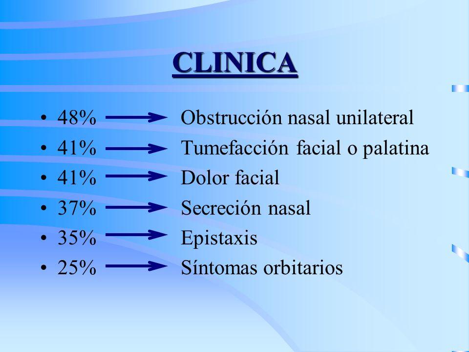 CLINICA 48% Obstrucción nasal unilateral