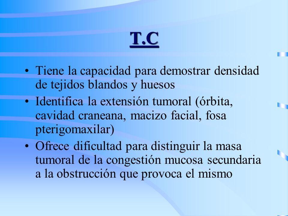 T.C Tiene la capacidad para demostrar densidad de tejidos blandos y huesos.