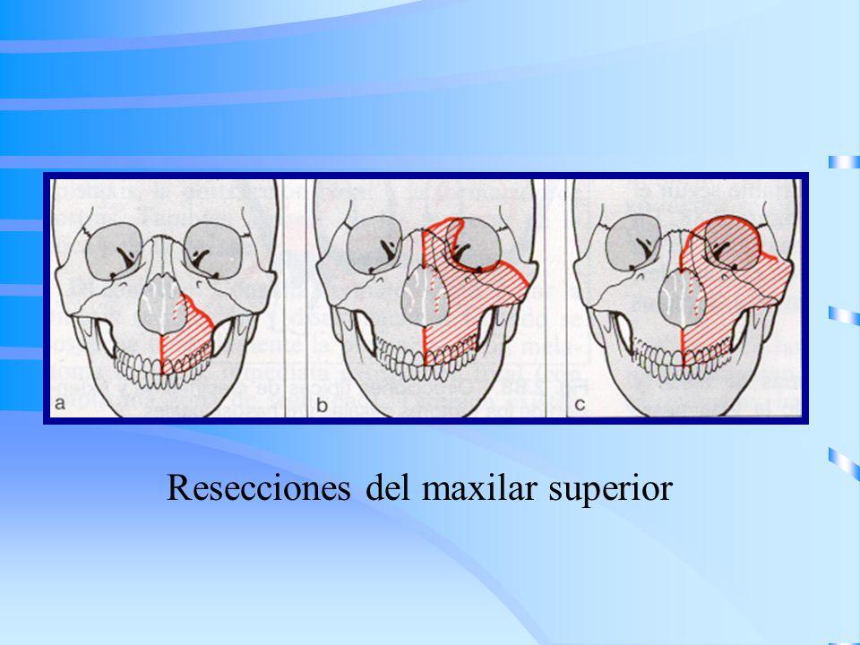 Resecciones del maxilar superior