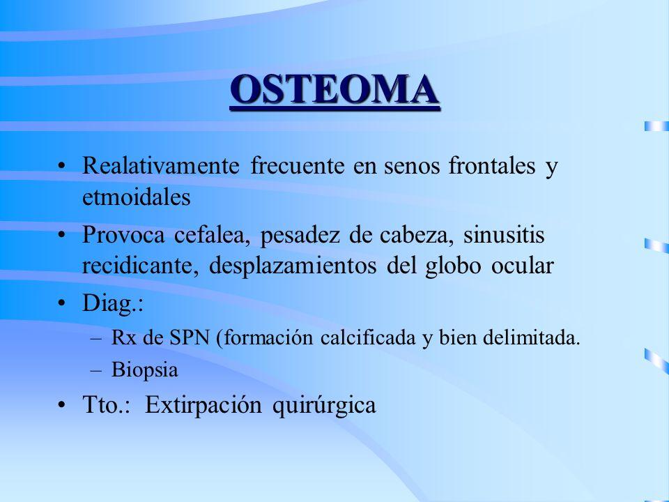 OSTEOMA Realativamente frecuente en senos frontales y etmoidales