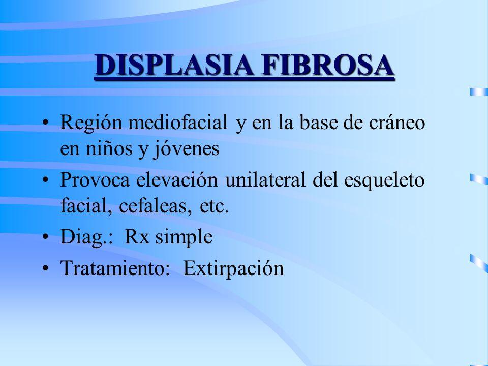 DISPLASIA FIBROSA Región mediofacial y en la base de cráneo en niños y jóvenes. Provoca elevación unilateral del esqueleto facial, cefaleas, etc.
