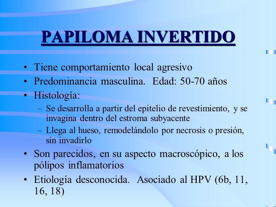 PAPILOMA INVERTIDO Tiene comportamiento local agresivo