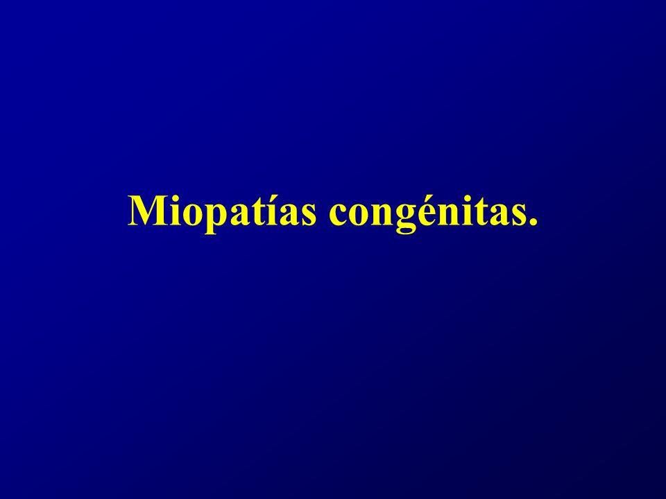 Miopatías congénitas.