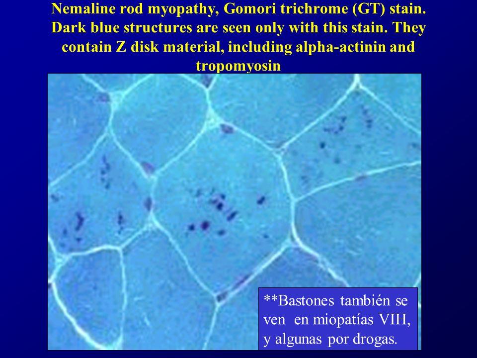 Nemaline rod myopathy, Gomori trichrome (GT) stain