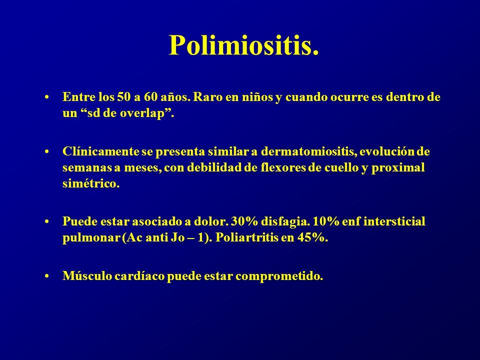 Polimiositis. Entre los 50 a 60 años. Raro en niños y cuando ocurre es dentro de un sd de overlap .