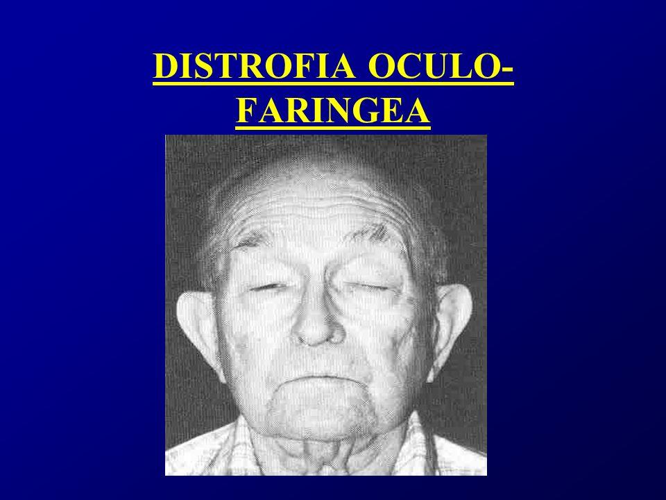 DISTROFIA OCULO-FARINGEA