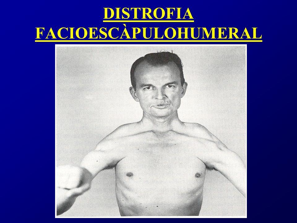 DISTROFIA FACIOESCÀPULOHUMERAL