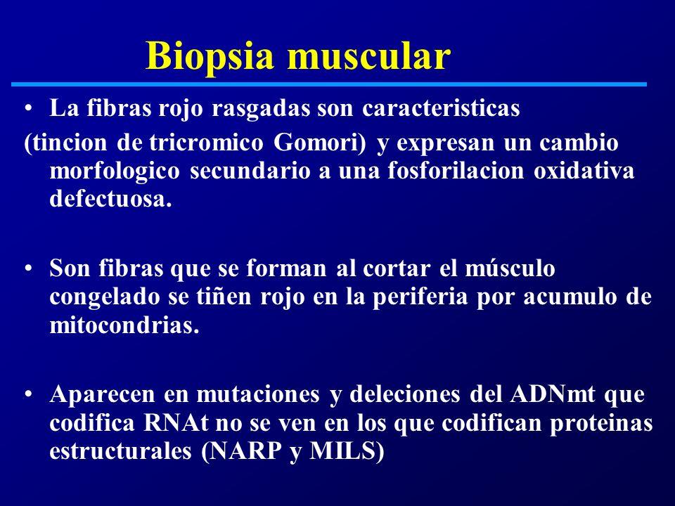Biopsia muscular La fibras rojo rasgadas son caracteristicas