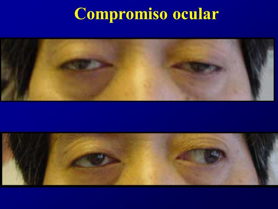 Compromiso ocular