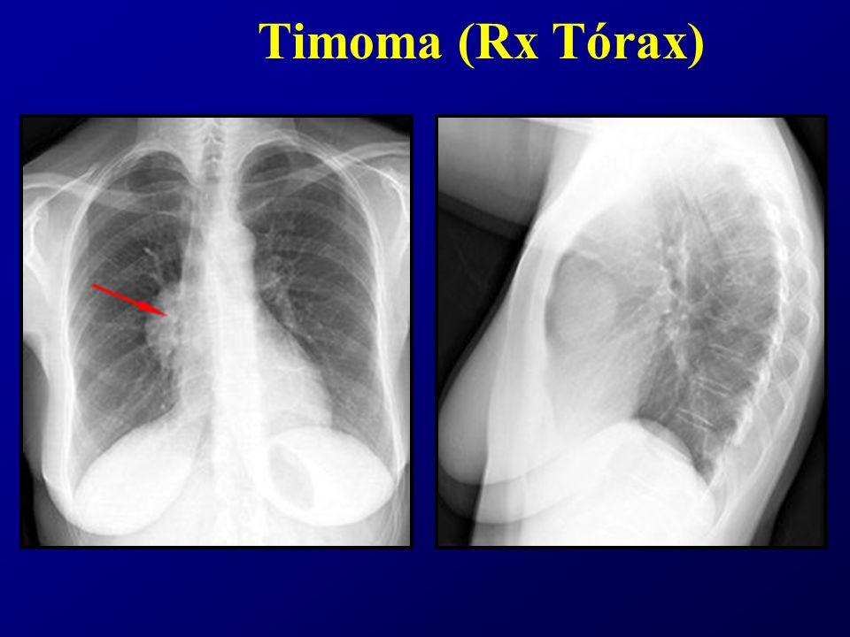 Timoma (Rx Tórax)