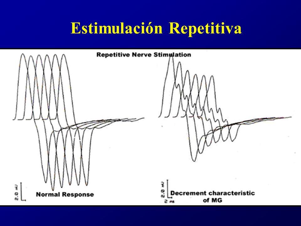Estimulación Repetitiva