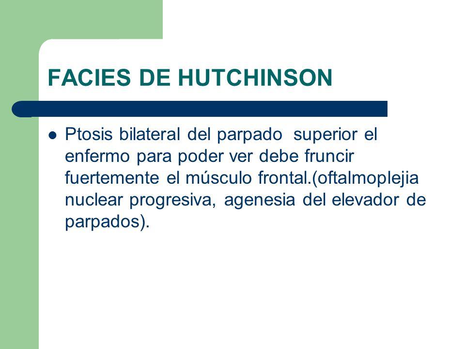 FACIES DE HUTCHINSON