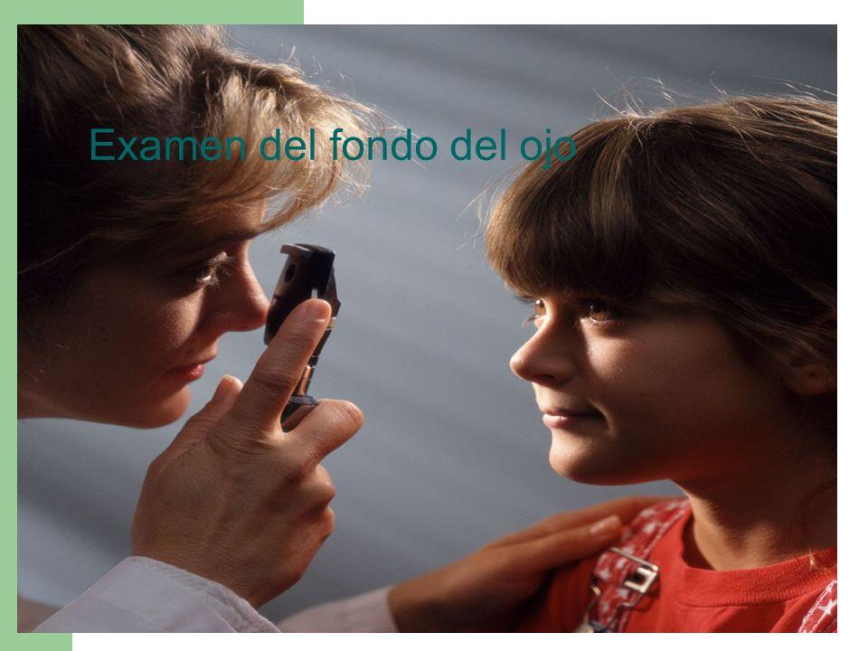 Examen del fondo del ojo