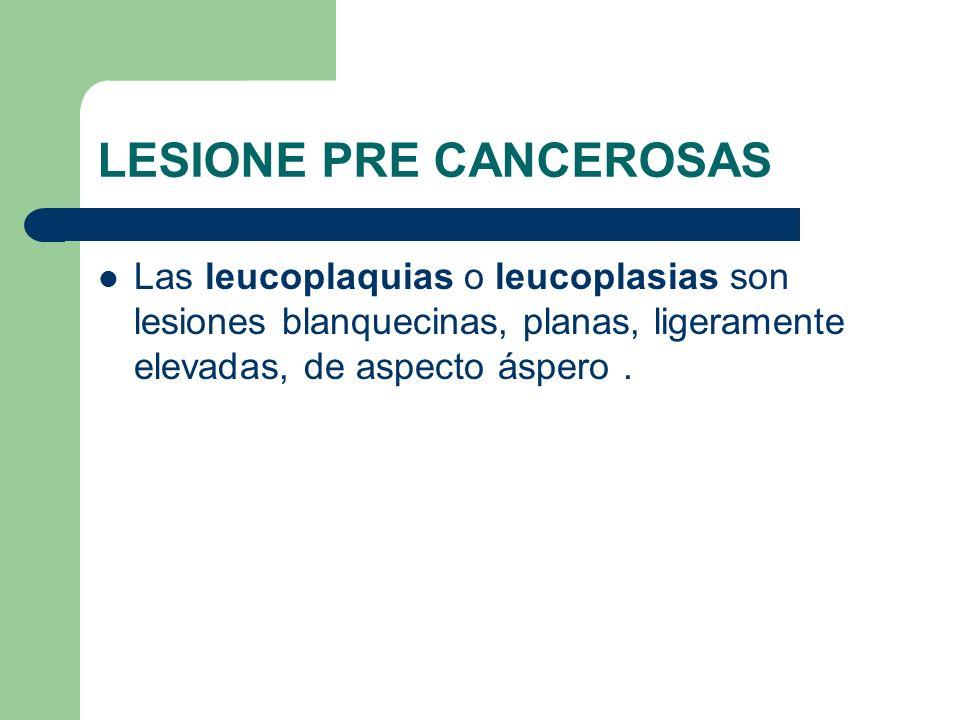 LESIONE PRE CANCEROSAS