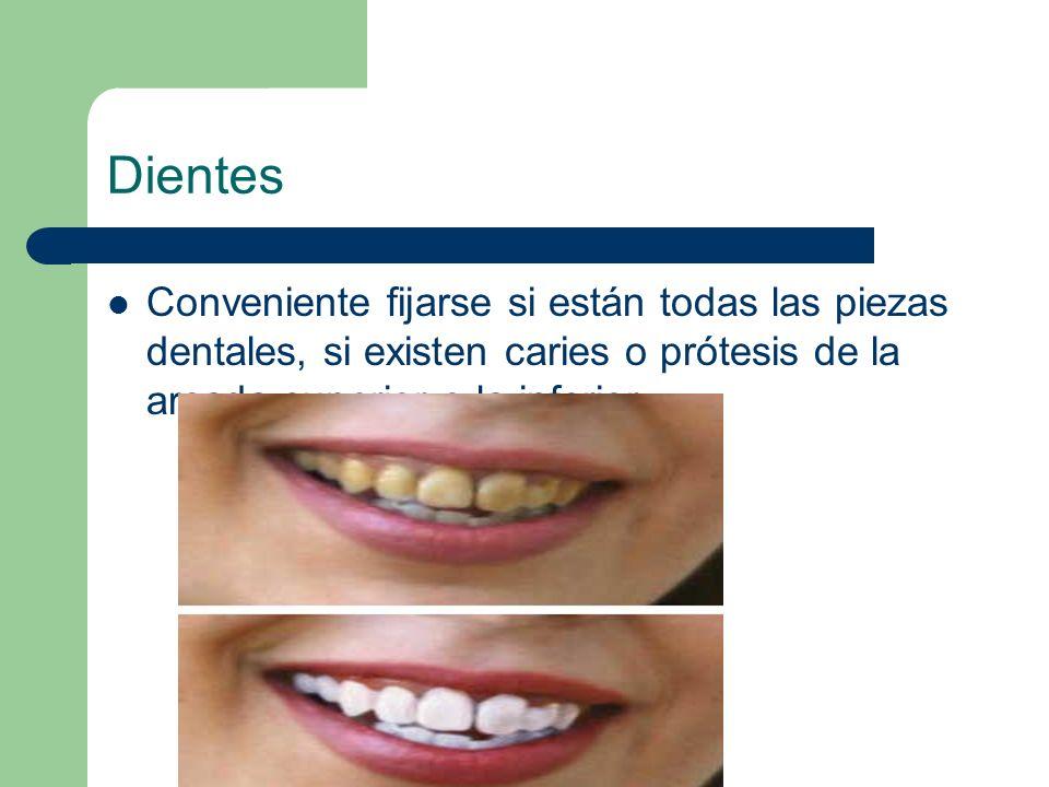 Dientes Conveniente fijarse si están todas las piezas dentales, si existen caries o prótesis de la arcada superior o la inferior .