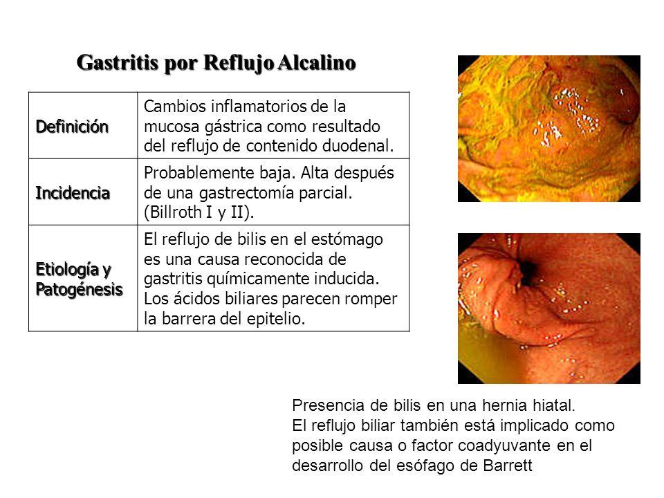 Gastritis por Reflujo Alcalino