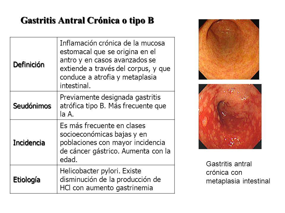 Gastritis Antral Crónica o tipo B