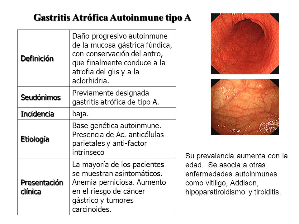 Gastritis Atrófica Autoinmune tipo A