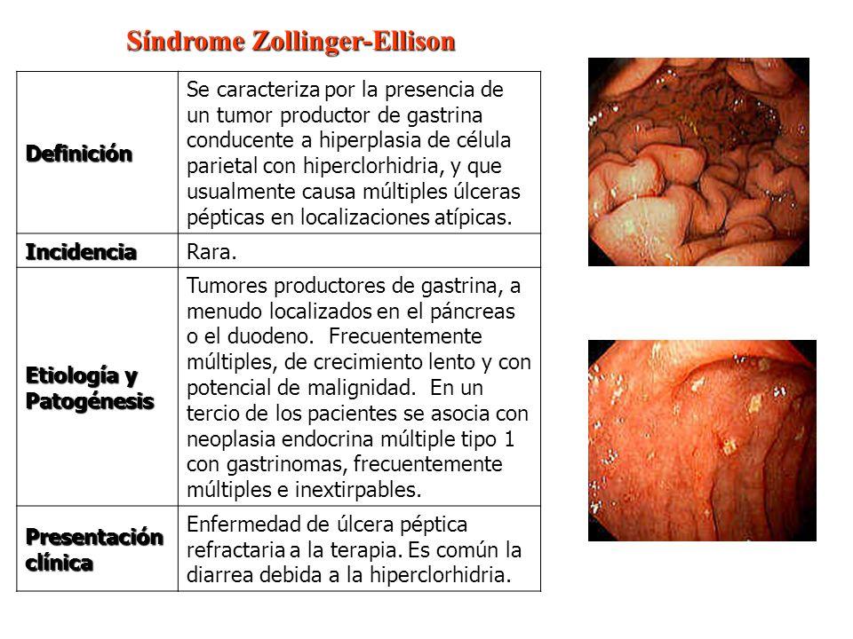 Síndrome Zollinger-Ellison