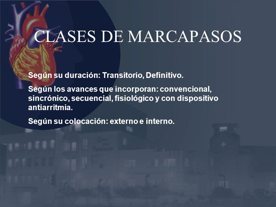 CLASES DE MARCAPASOS Según su duración: Transitorio, Definitivo.