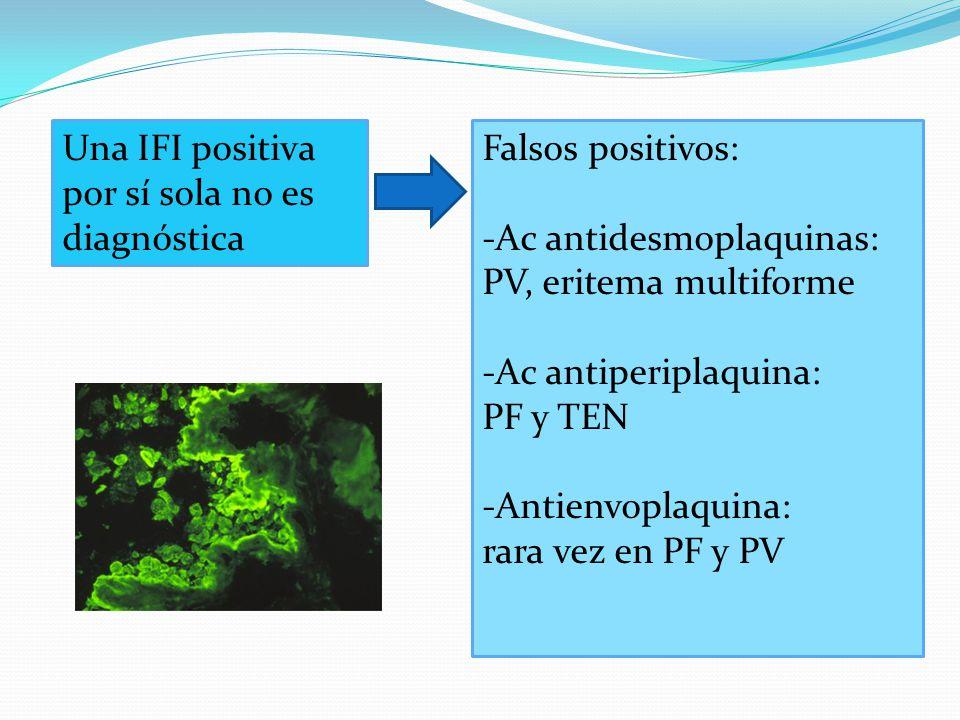 Una IFI positiva por sí sola no es diagnóstica