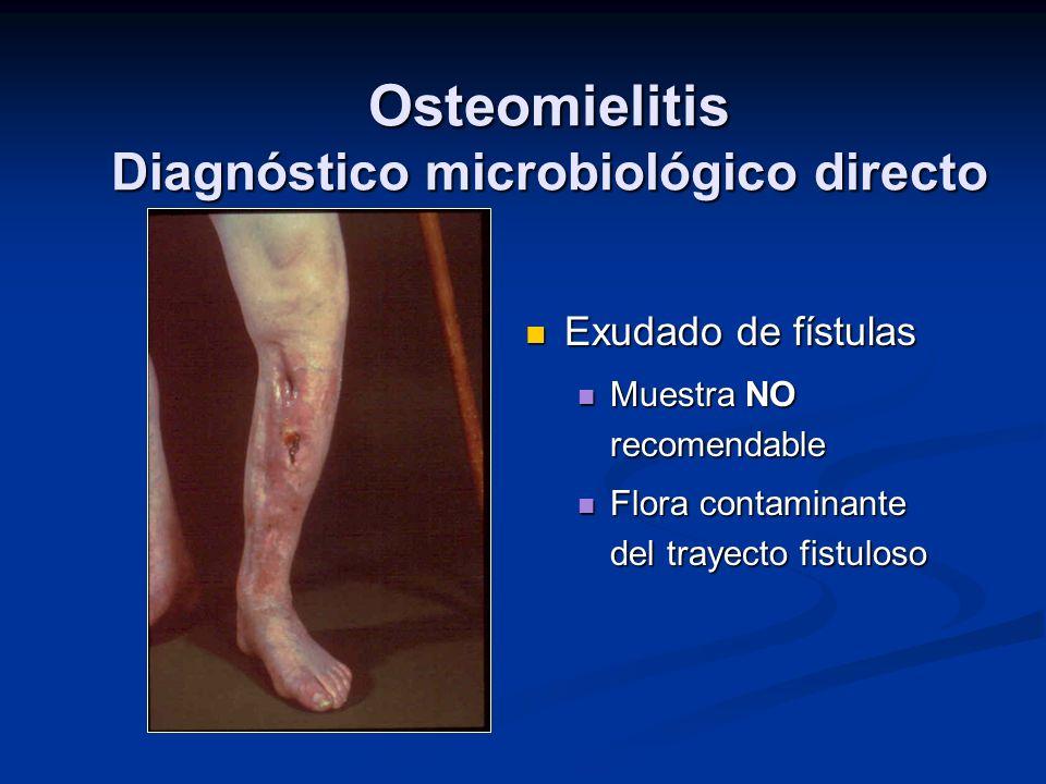 Osteomielitis Diagnóstico microbiológico directo