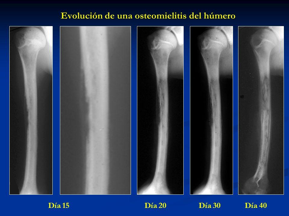 Evolución de una osteomielitis del húmero