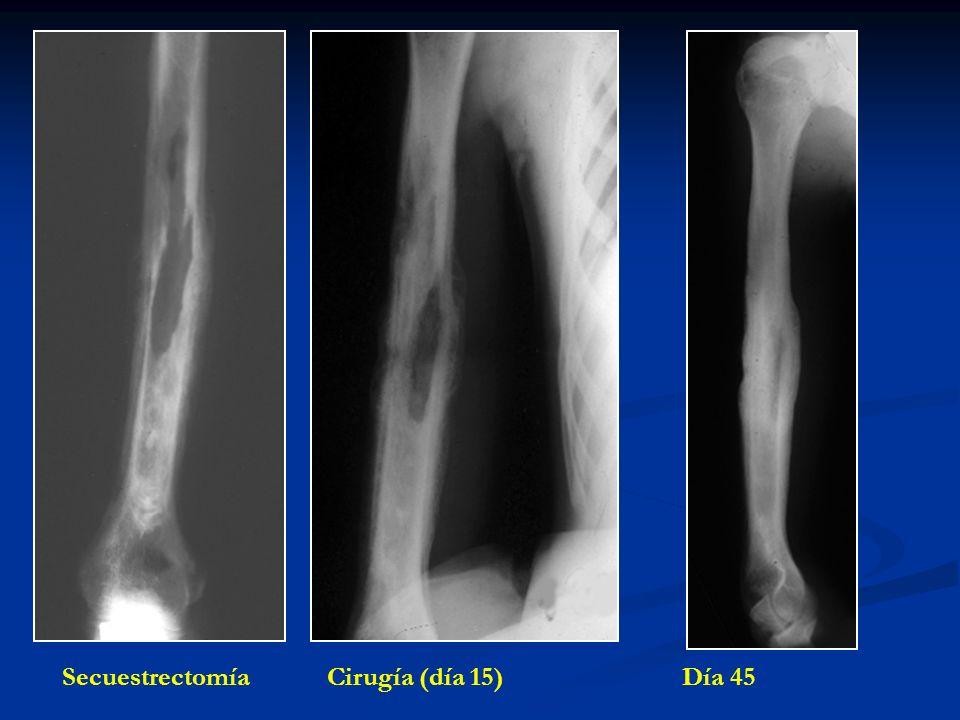Secuestrectomía Cirugía (día 15) Día 45