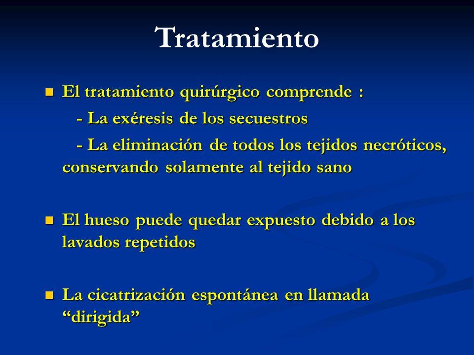Tratamiento El tratamiento quirúrgico comprende :
