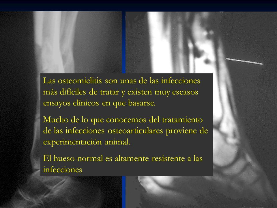 Las osteomielitis son unas de las infecciones más difíciles de tratar y existen muy escasos ensayos clínicos en que basarse.