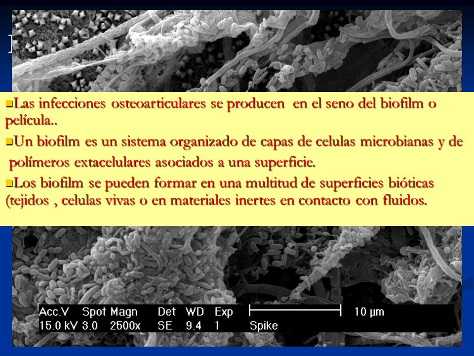 Infecciones en el seno del biofilm