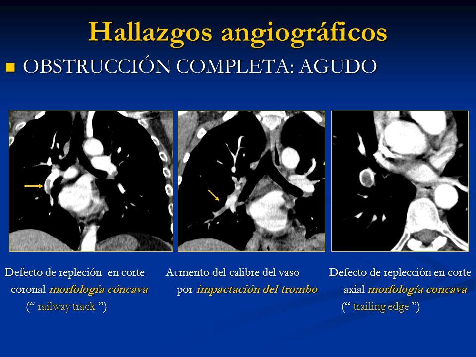 Hallazgos angiográficos