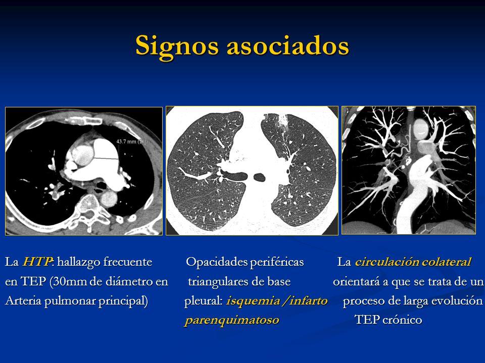 Signos asociadosLa HTP: hallazgo frecuente Opacidades periféricas La circulación colateral.