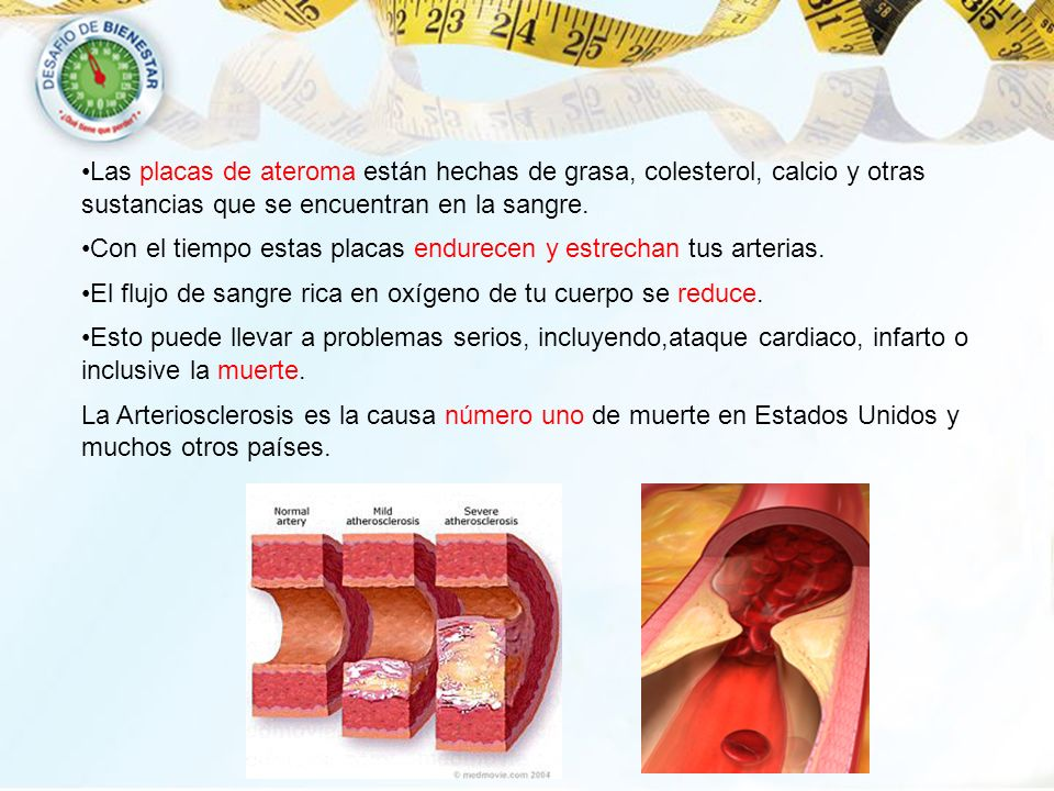 Las placas de ateroma están hechas de grasa, colesterol, calcio y otras sustancias que se encuentran en la sangre.