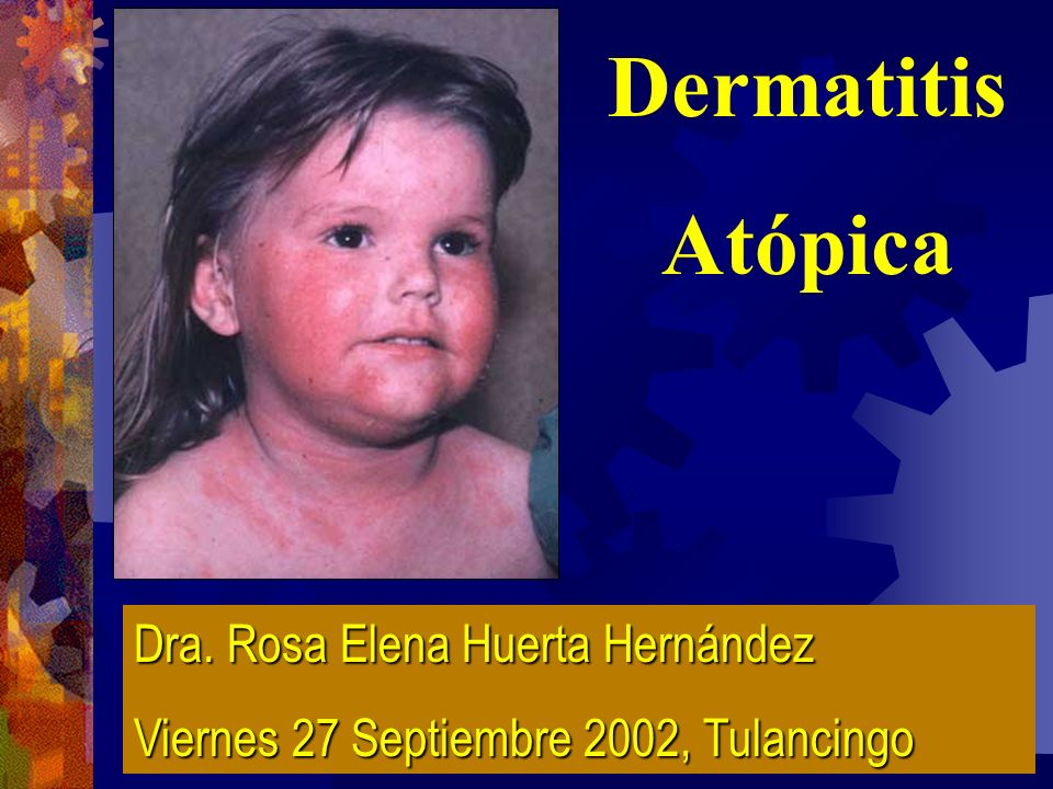 Dermatitis Atópica Dra. Rosa Elena Huerta Hernández