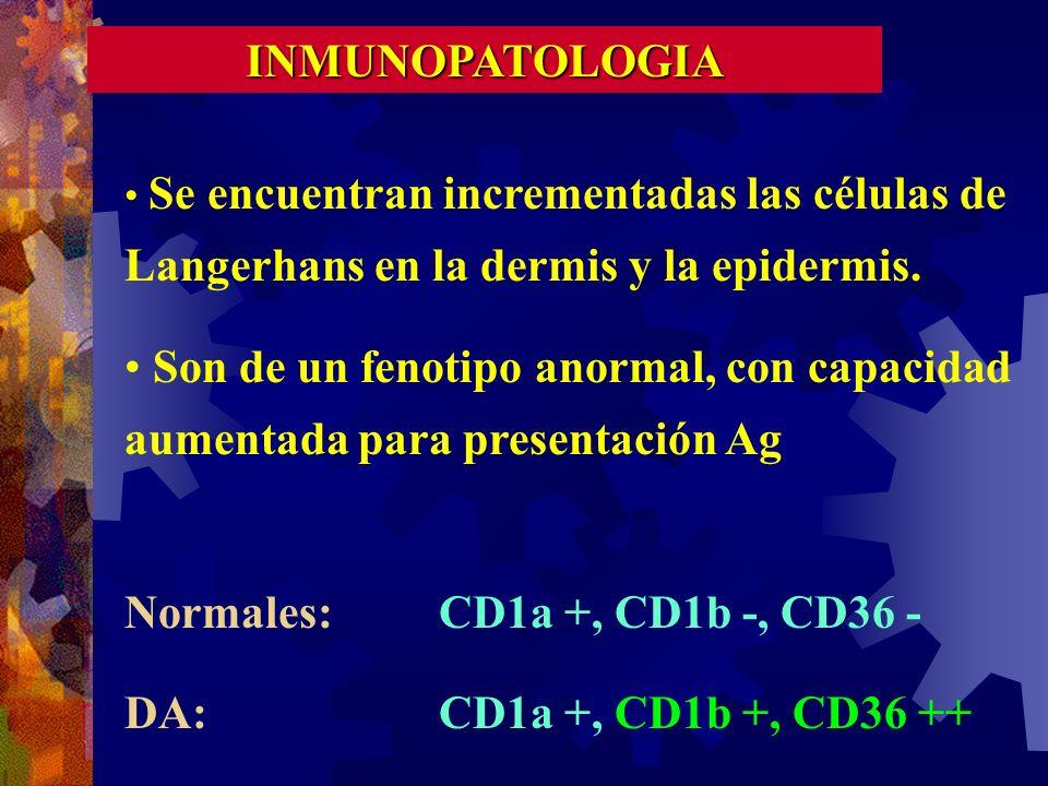 Normales: CD1a +, CD1b -, CD36 - DA: CD1a +, CD1b +, CD36 ++