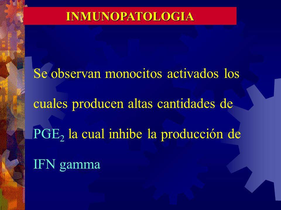 INMUNOPATOLOGIA Se observan monocitos activados los cuales producen altas cantidades de PGE2 la cual inhibe la producción de IFN gamma.