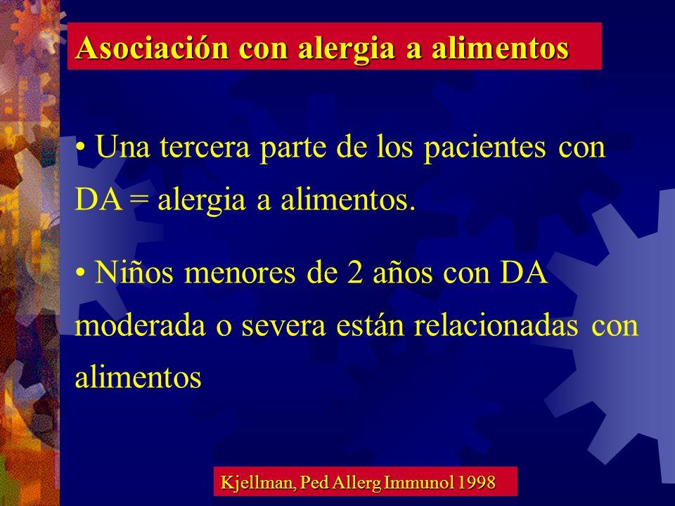 Asociación con alergia a alimentos
