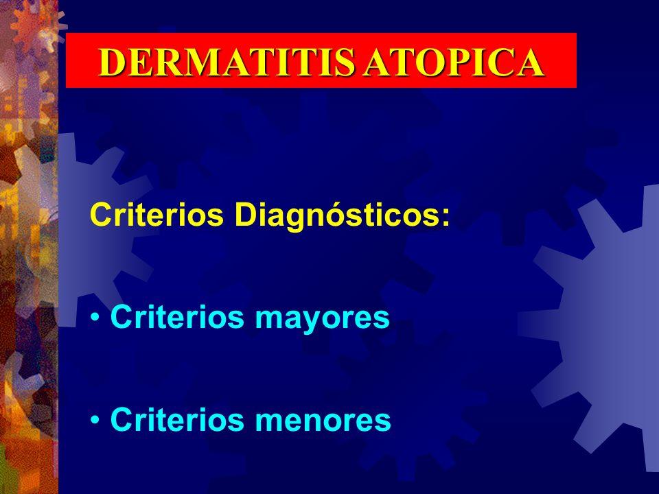DERMATITIS ATOPICA Criterios Diagnósticos: Criterios mayores