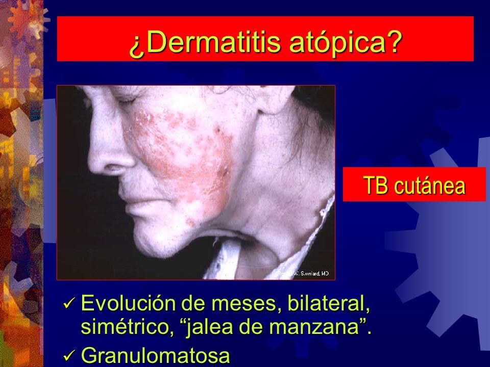 ¿Dermatitis atópica TB cutánea