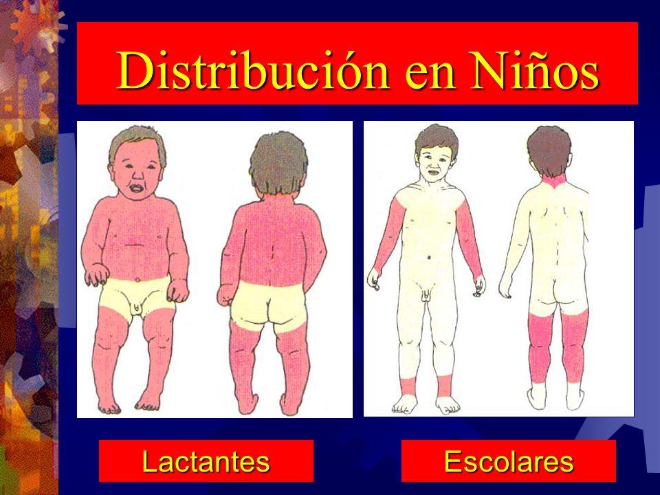 Distribución en Niños Lactantes Escolares