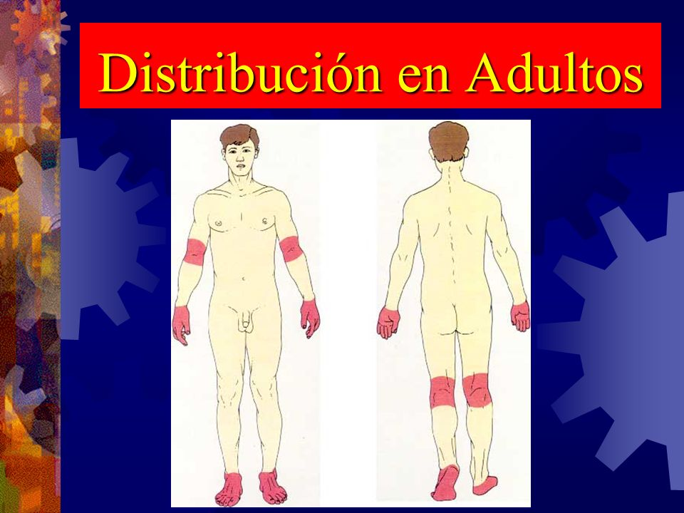 Distribución en Adultos