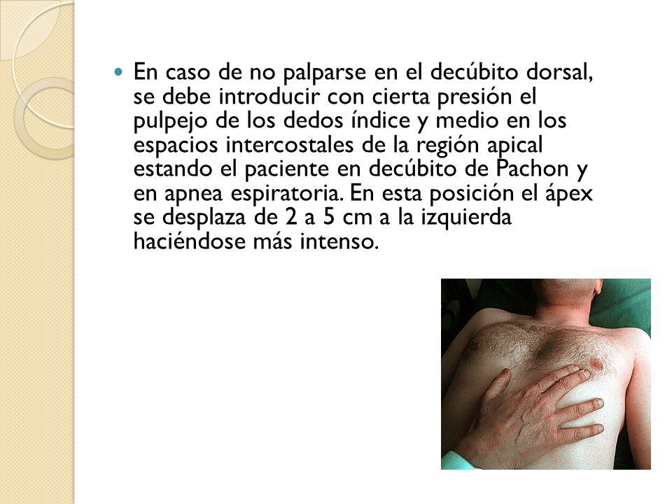 En caso de no palparse en el decúbito dorsal, se debe introducir con cierta presión el pulpejo de los dedos índice y medio en los espacios intercostales de la región apical estando el paciente en decúbito de Pachon y en apnea espiratoria.