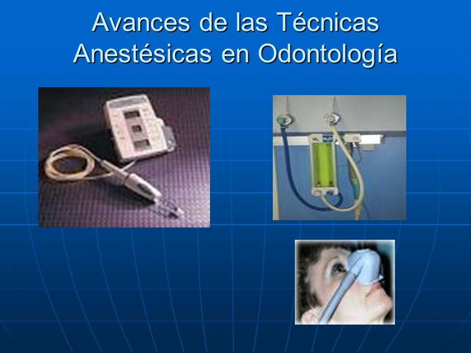 Avances de las Técnicas Anestésicas en Odontología