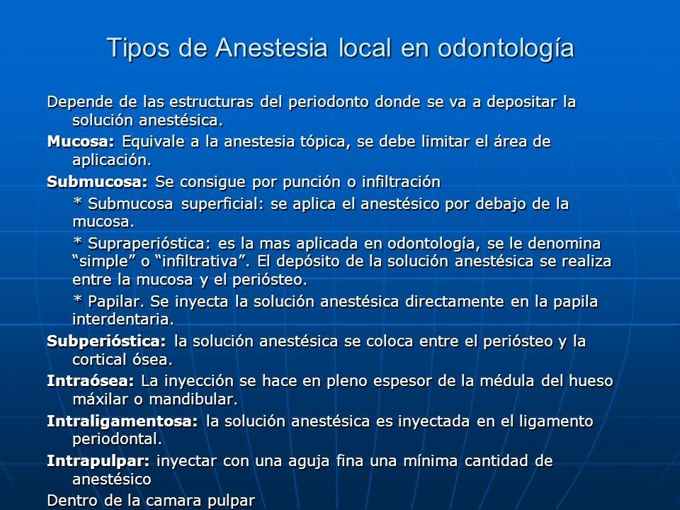 Tipos de Anestesia local en odontología