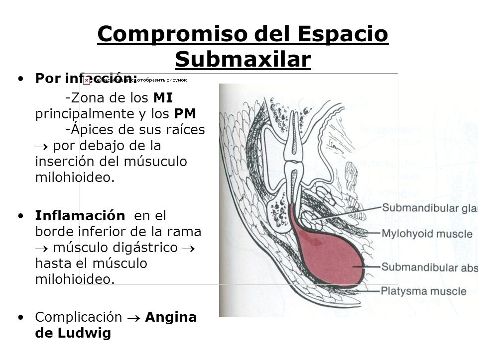 Magnífico Anatomía Región Submandibular Galería - Anatomía de Las ...