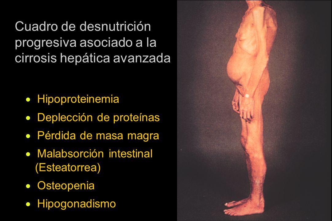 Cuadro de desnutrición progresiva asociado a la