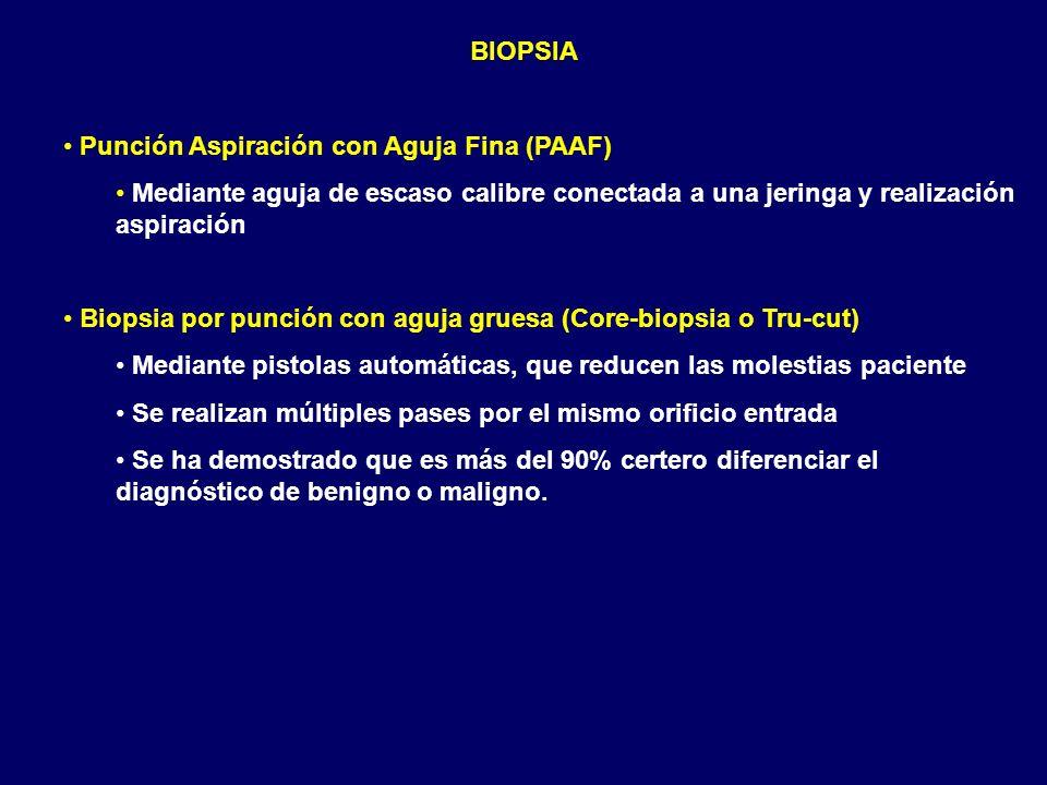 BIOPSIA Punción Aspiración con Aguja Fina (PAAF) Mediante aguja de escaso calibre conectada a una jeringa y realización aspiración.