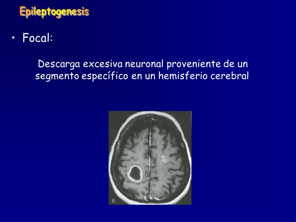 Epileptogenesis Focal: